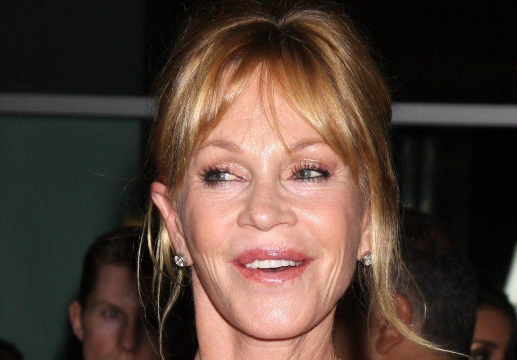 Melanie Griffith bad celebrity plastic surgery