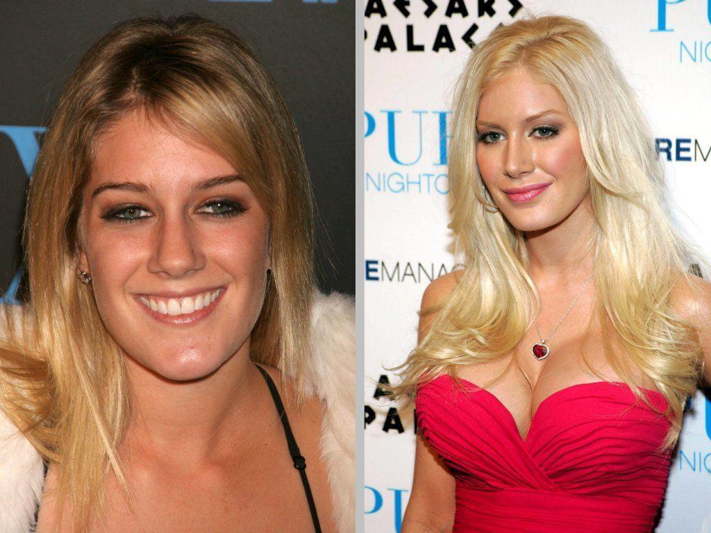 bad celebrity plastic surgery