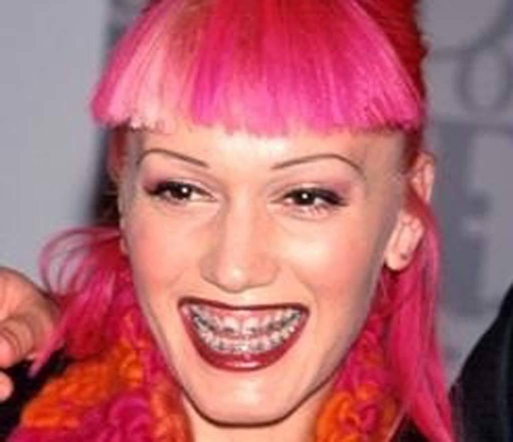 famous faces who wore adult braces